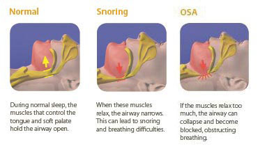 Sleep-Apnea-treatment